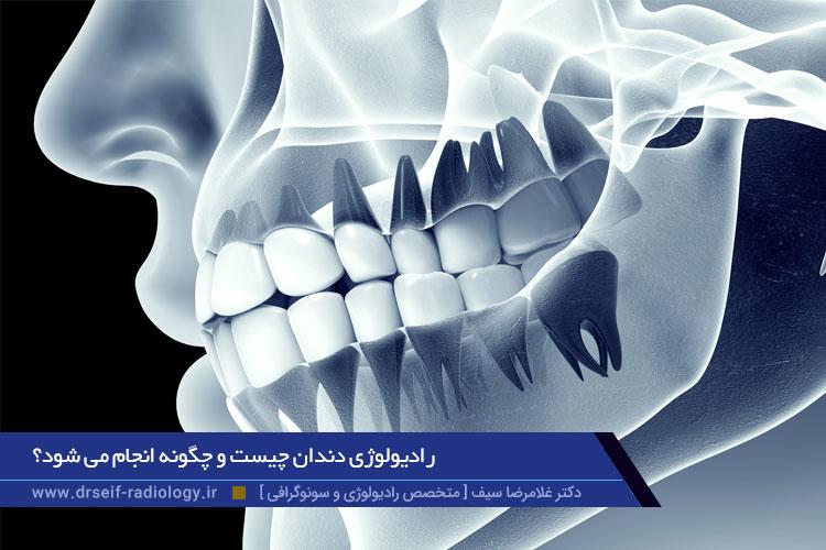 رادیولوژی دندان چیست؟