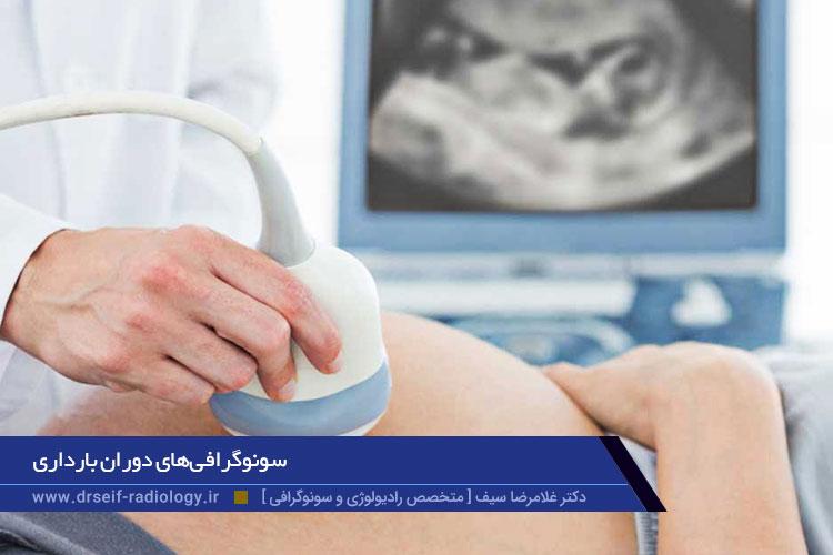 سونوگرافیهای دوران بارداری