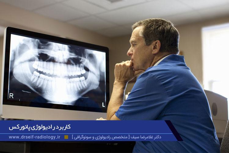 کاربرد رادیولوژی پانورکس
