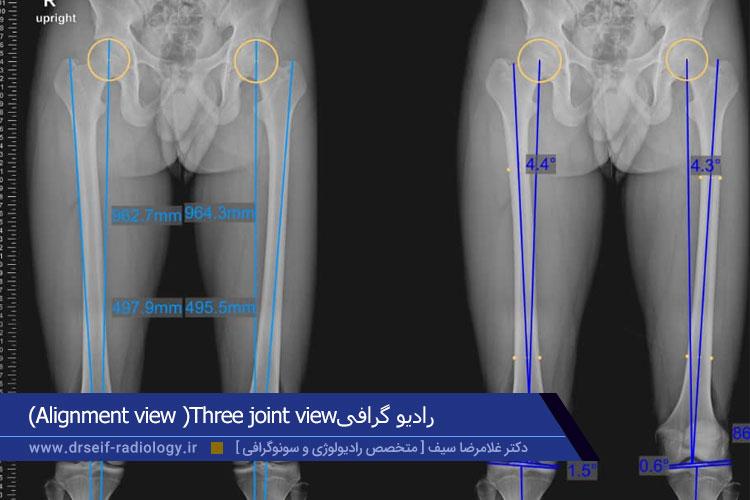 رادیوگرافی alignment view