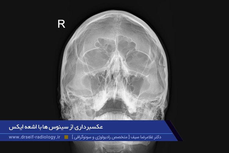 رادیوگرافی اسکولیوزیس