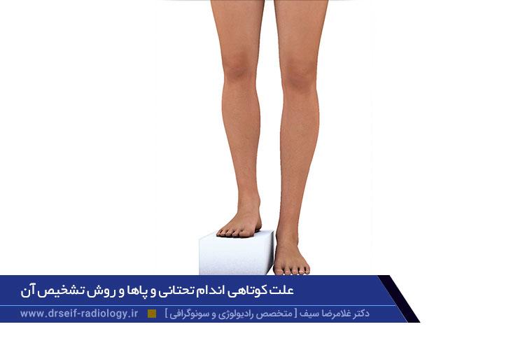 علت کوتاهی اندام تحتانی و پاها و روش تشخیص آن