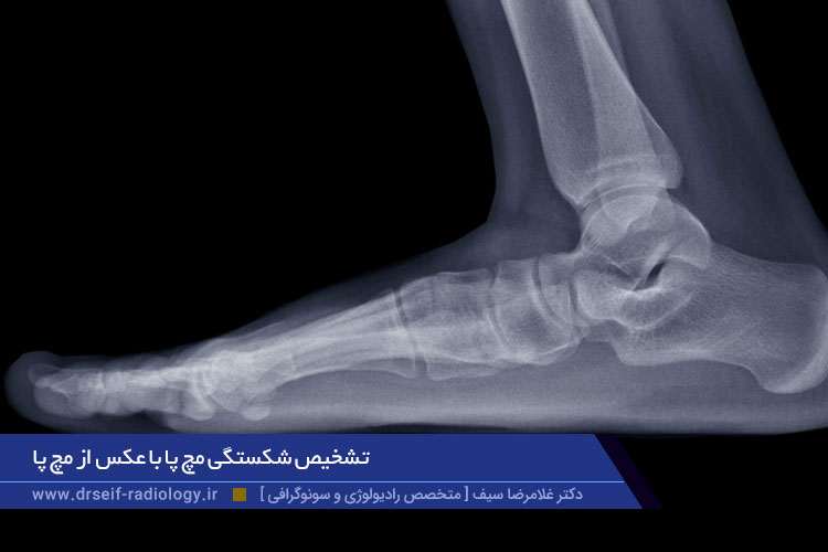 تشخیص شکستگی مچ پا با عکس