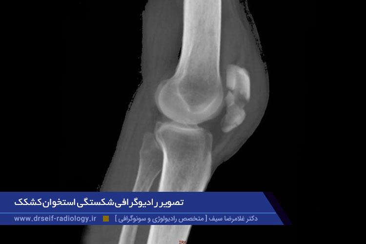رادیوگرافی شکستگی کشکک زانو