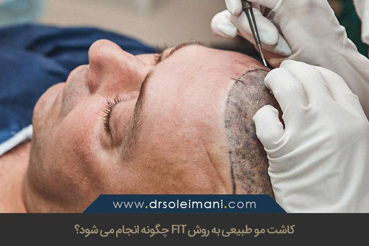 FIT جدیدترین روش کاشت مو | کاشت مو به روش اف آی تی