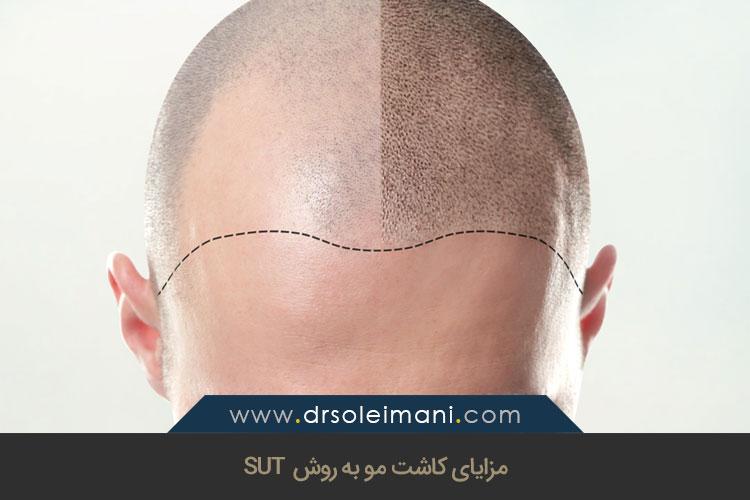کاشت مو به روش SUT | کلینیک بهین اصفهان