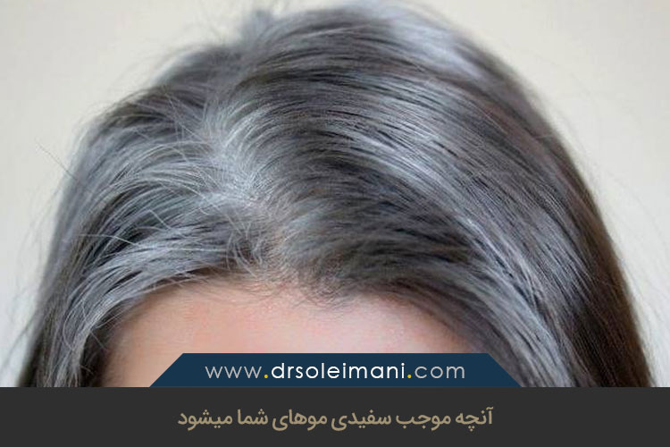 علل سفیدی مو | کلینیک کاشت مو در اصفهان