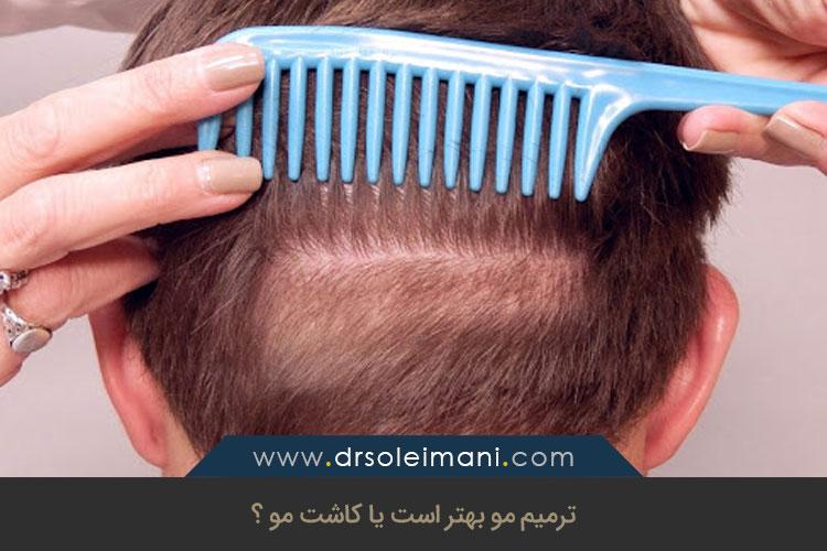 کاشت مو وترمیم مو چه تفاوتهایی با هم دارند؟ | کلینیک کاشت مو در اصفهان