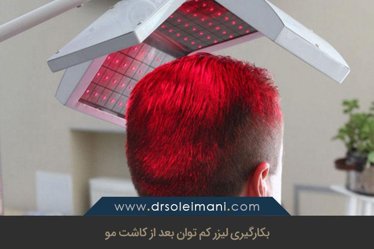 تاثیر لیزر بعد از کاشت مو | کلینیک کاشت مو بهین در اصفهان