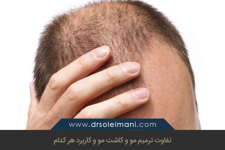 تفاوت ترمیم مو با کاشت مو | کلینیک کاشت مو بهین در اصفهان