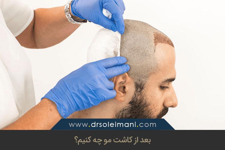 مراقبتهای پس از کاشت مو