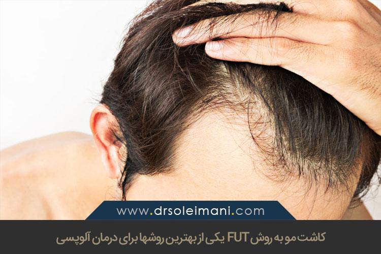 درمان آلوپسی با کاشت مو