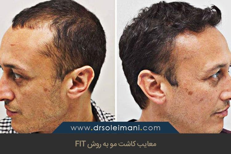 معایب کاشت مو به روش FIT