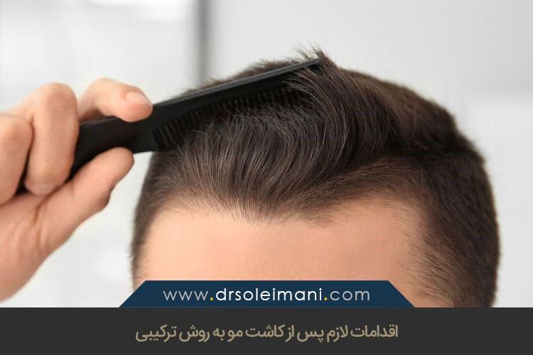 اقدامات لازم پس از کاشت مو به روش ترکیبی