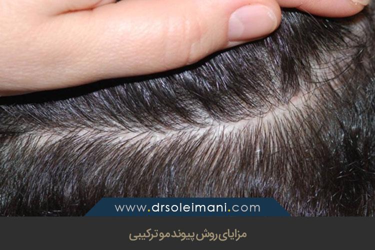 مزایای روش پیوند مو ترکیبی