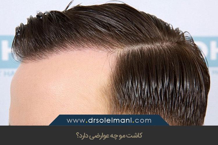 کاشت مو چه عوارضی دارد؟