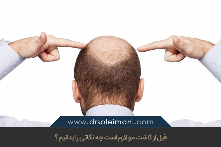 نکاتی برای قبل از کاشت مو