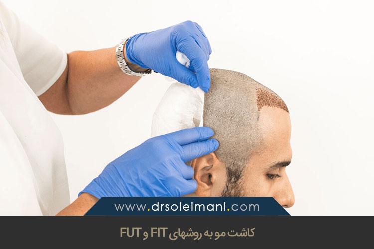 کاشت مو به روشهای FIT و FUT