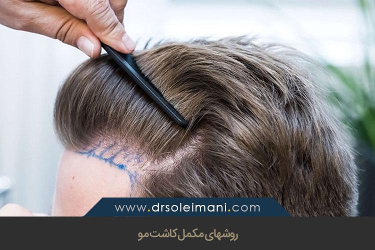 کاشت مو و نتایج آن