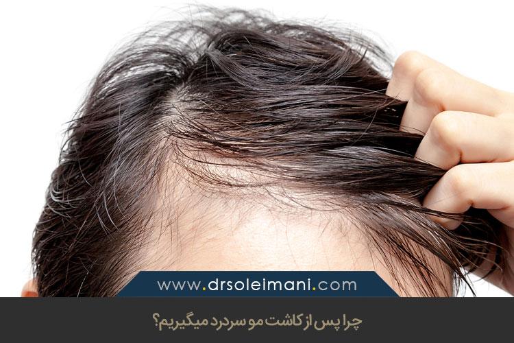 کاشت مو و سردرد