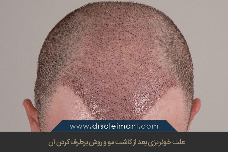 علت خونریزی بعد از کاشت مو