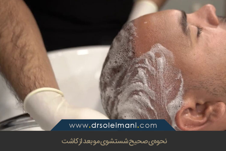 شستشوی مو بعد از کاشت
