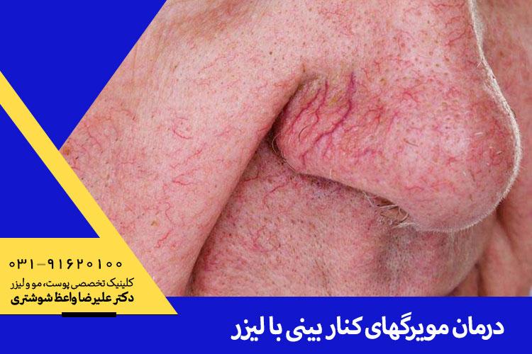 درمان مویرگهای کنار بینی با لیزر در اصفهان