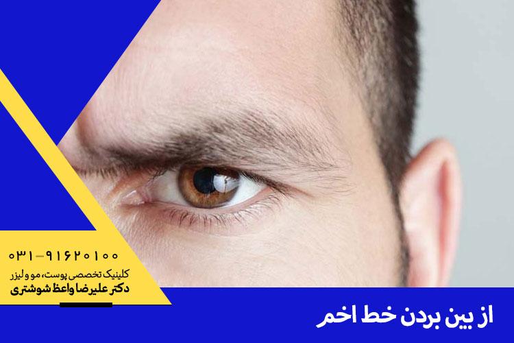 بهترین درمان خط اخم در اصفهان