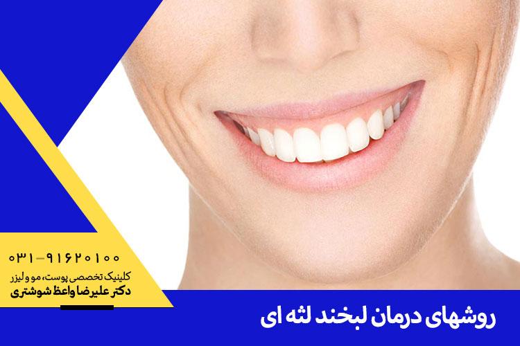 تزریق بوتاکس لبخند لثه ای در اصفهان