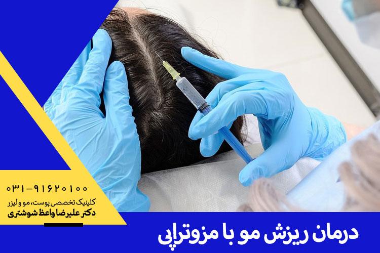 بهترین درمان ریزش مو با مزوتراپی در اصفهان
