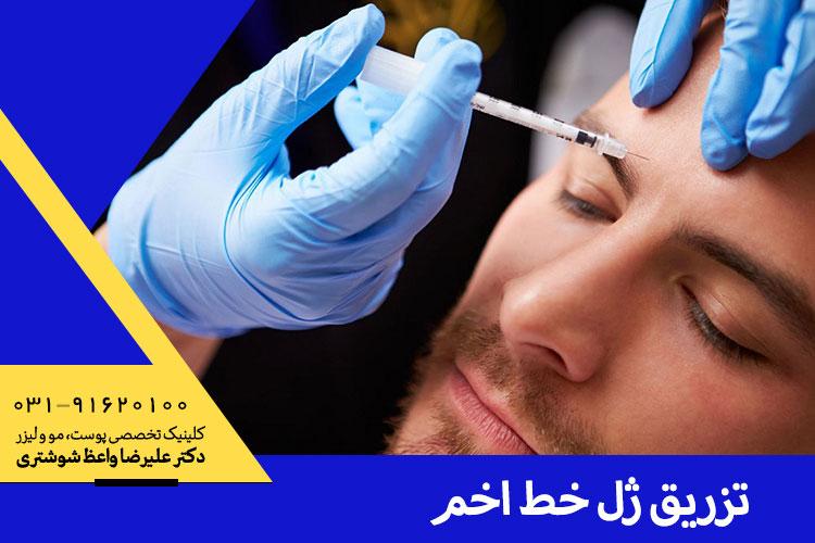 بهترین تزریق ژل به خط اخم در اصفهان