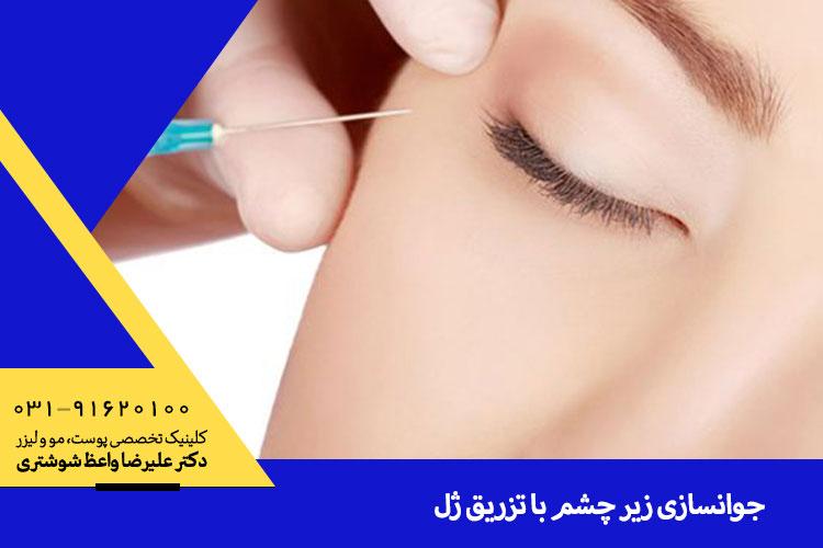 بهترین تزریق ژل زیر چشم در اصفهان
