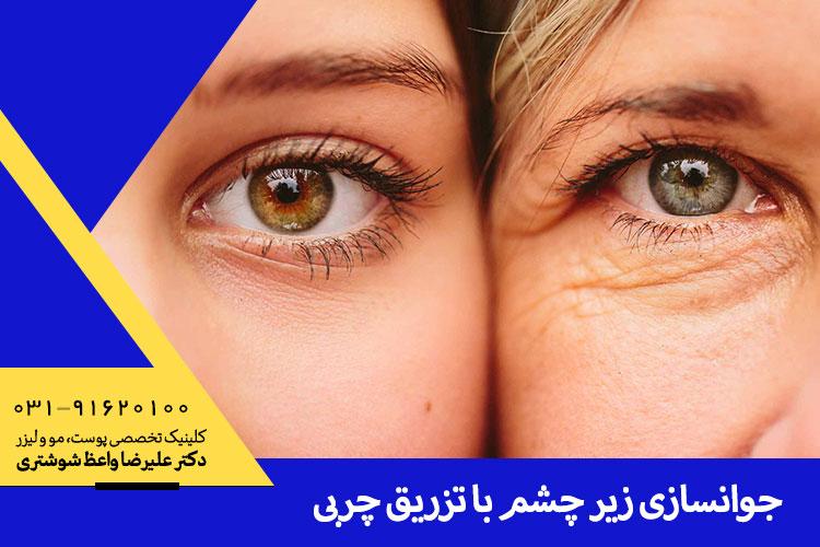 بهترین تزریق چربی زیر چشم در اصفهان