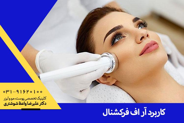 کاربرد لیزر آر اف فرکشنال در اصفهان