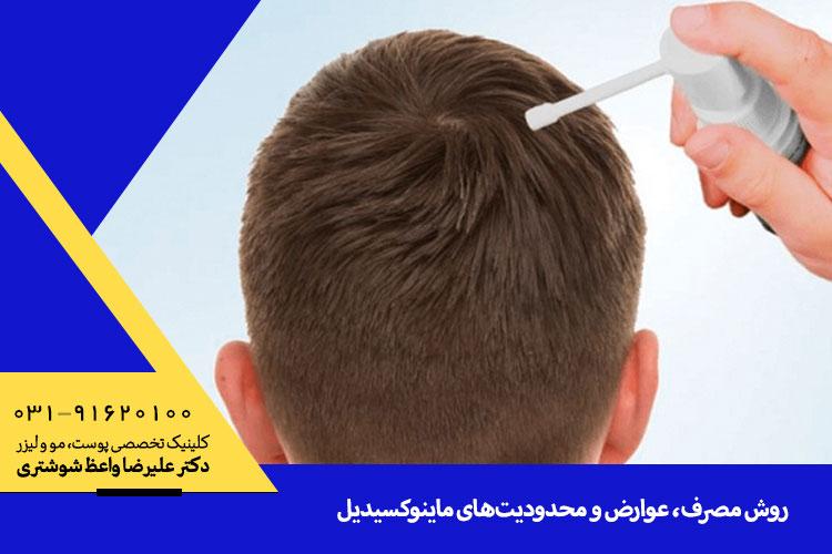 بررسی عوارض و محدودیت های ماینوکسیدیل در اصفهان