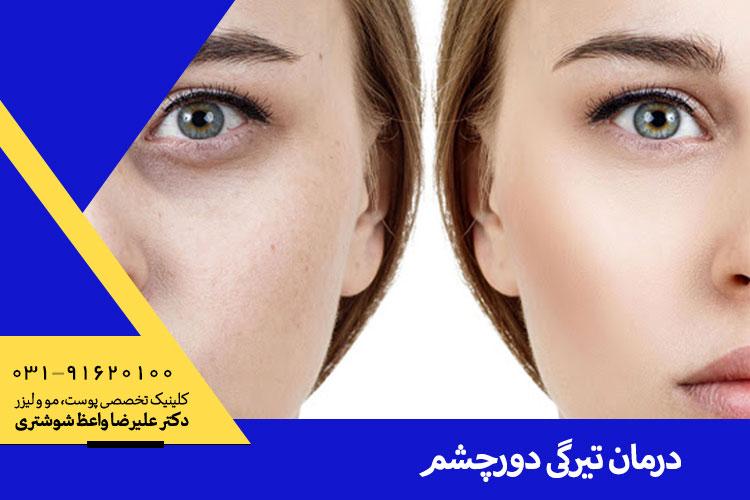 بهترین درمان تیرگی دور چشم ، دکتر علیرضا واعظ شوشتری