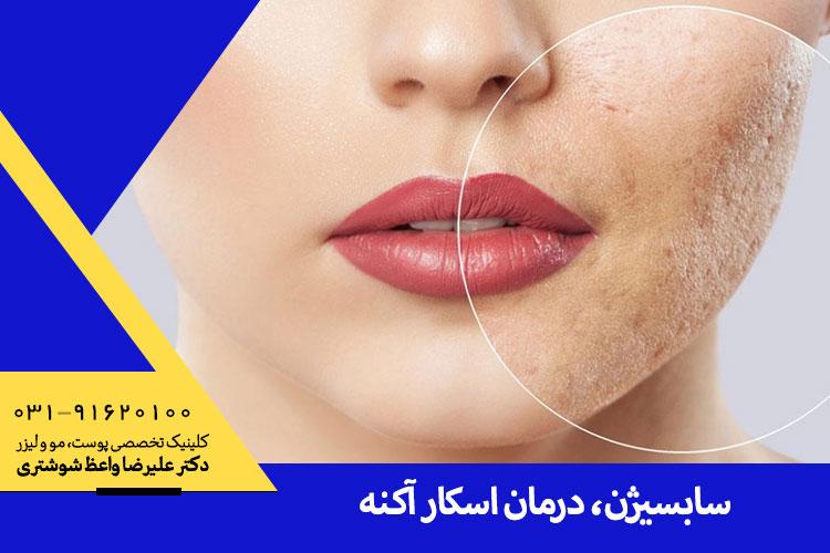 بهترین درمان اسکار آکنه در اصفهان