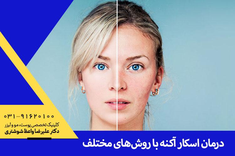 درمان اسکار و آکنه در اصفهان ، دکتر علیرضا واعظ شوشتری