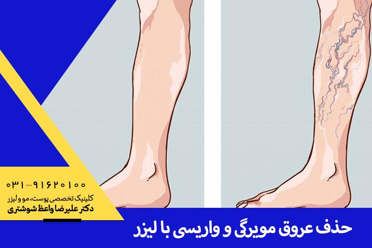حذف عروق مویرگی و واریسی با لیزر در اصفهان