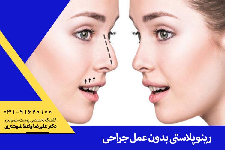 بهترین رینوپلاستی بدون عمل جراحی در اصفهان
