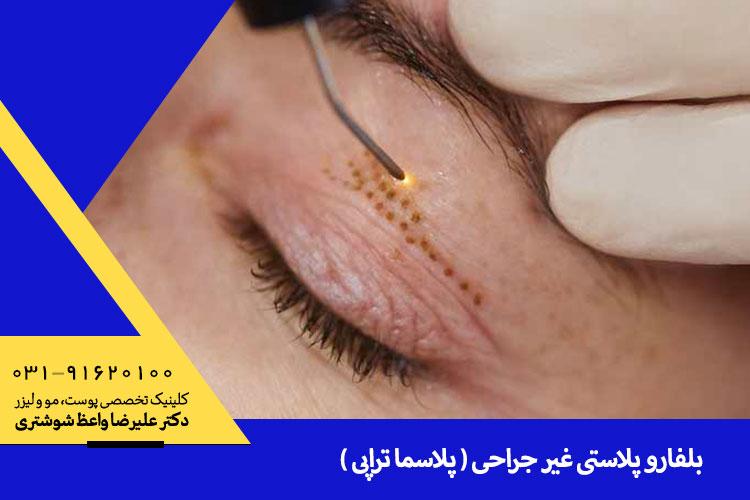 بهترین بلفارو پلاستی غیر جراحی در اصفهان