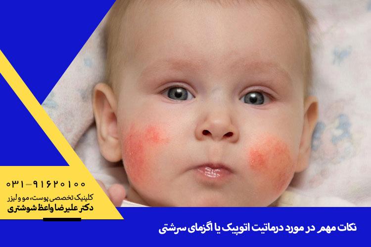 درمان و تشخیص اگزما در اصفهان