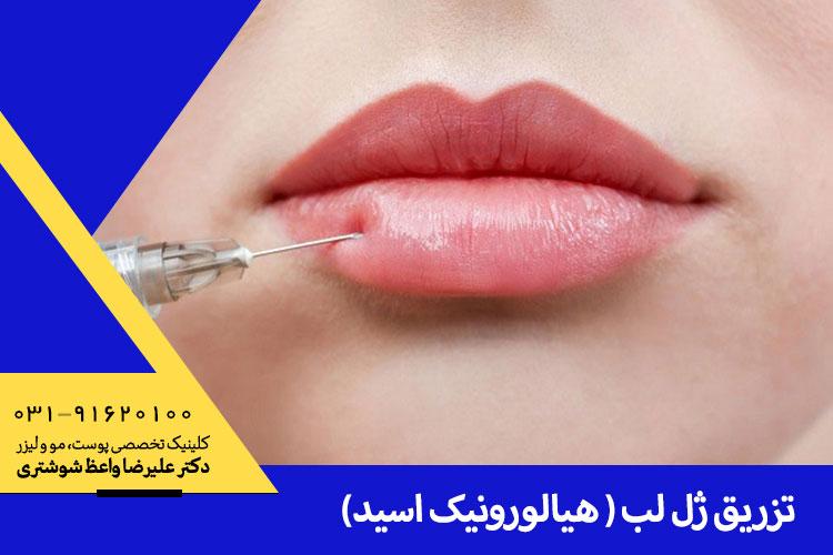 تزریق ژل لب هیالورونیک اسید در اصفهان