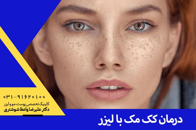 بهترین درمان کک و مک در اصفهان