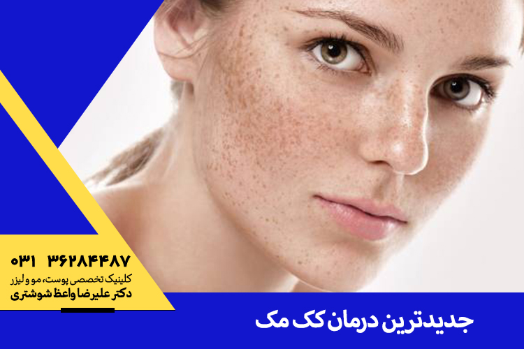 سریعترین درمان کک و مک در اصفهان