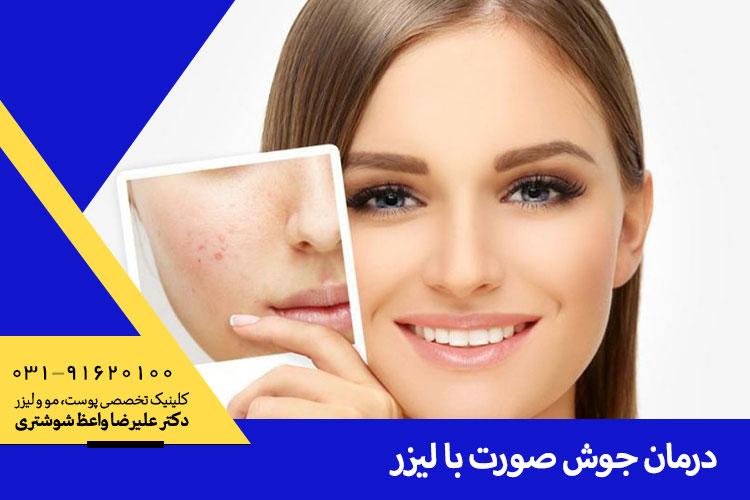 بهترین درمان جوش صورت با لیزر