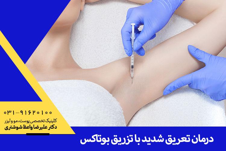 درمان تعریق زیاد با تزریق بوتاکس
