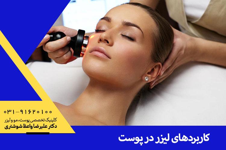 بهترین لیزرهای پوست در اصفهان