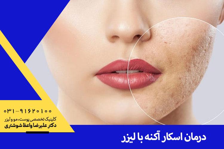 بهترین درمان اسکار آکنه با لیزر در اصفهان