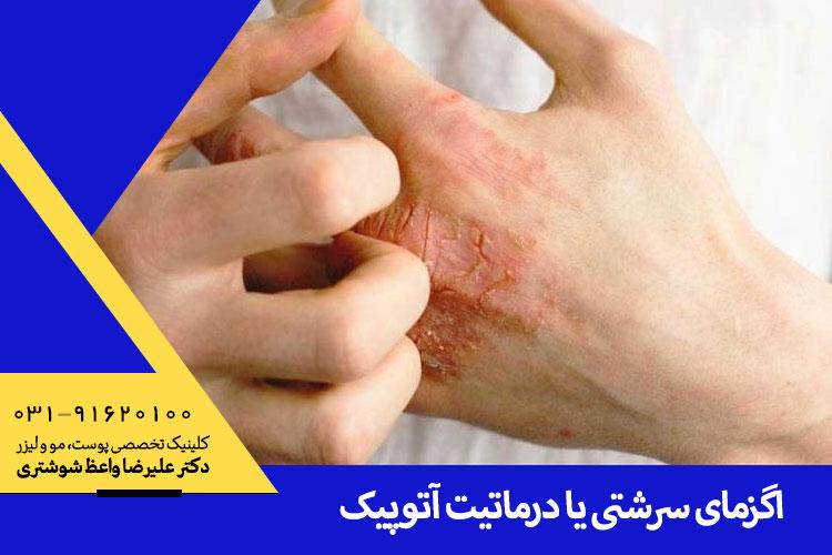 درمان اگزما در اصفهان ، دکتر واعظ شوشتری جراح و متخصص پوست